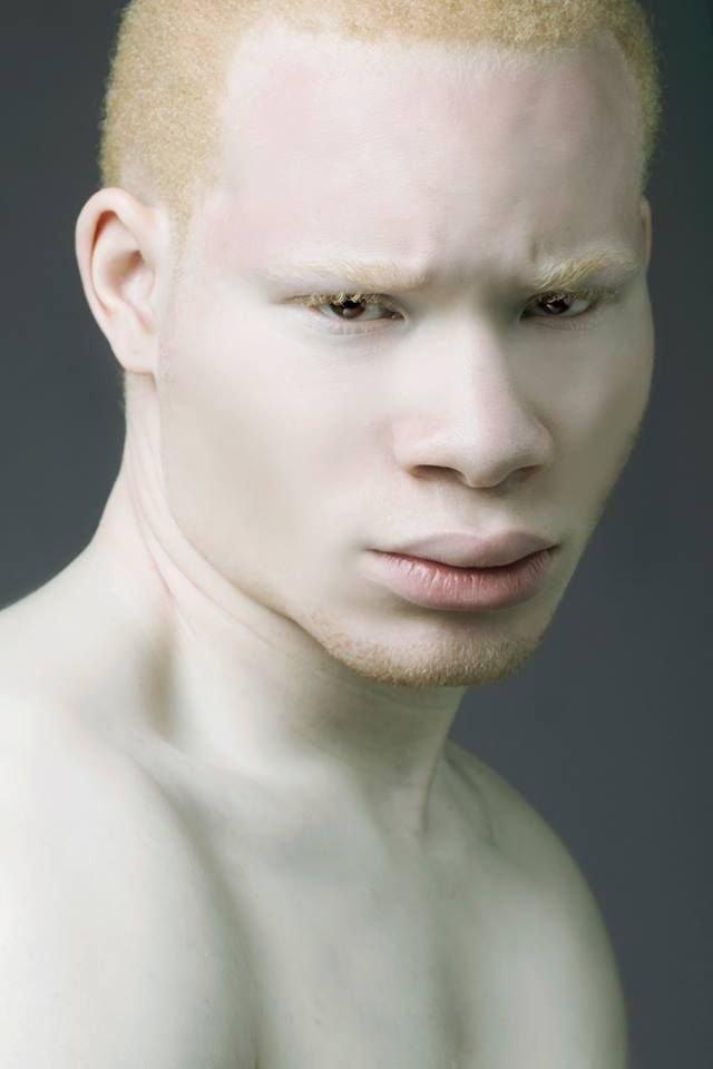 albino black model - 640×960
