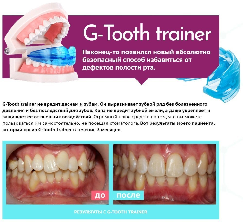 Капа Dental Trainer для выравнивания зубов. Для Выпрямления Зубов Купить со  скидкой -50% 09b3988ce67