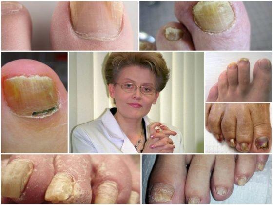 Елена Малышева о грибке ногтей на ногах в передаче «Жить здорово»