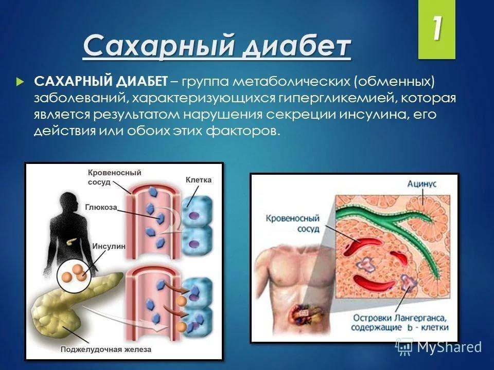 Влияние сахарного диабета на зубочелюстную систему