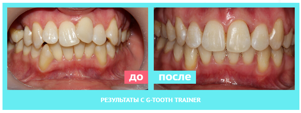 Капа Dental Trainer для выравнивания зубов. Капа dental trainer для выравнивания  зубов где Сайт производителя d4074b41cbe