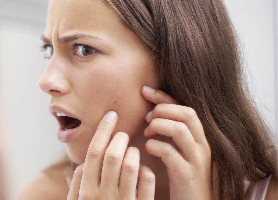 Проблемы кожи лица фото