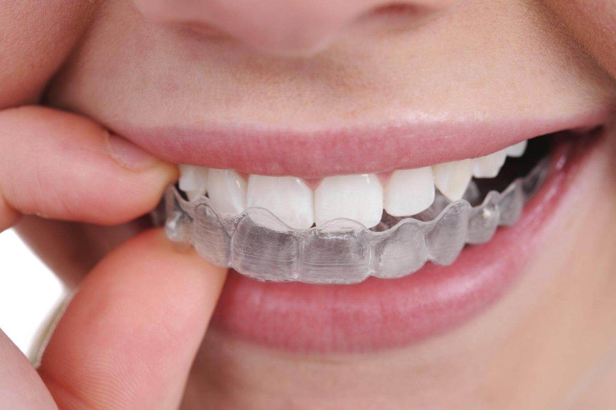 Капа Dental Trainer для выравнивания зубов. Капы для выравнивания зубов у  взрослых — цена в 62bdcc23dde