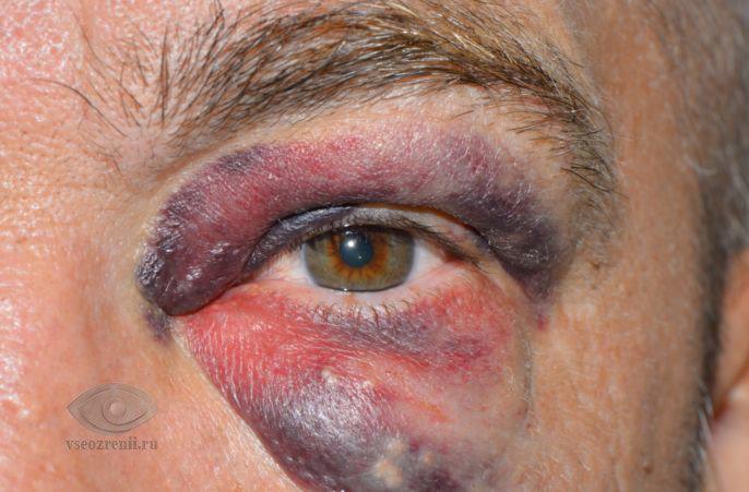 молнии в глазах причины и лечение