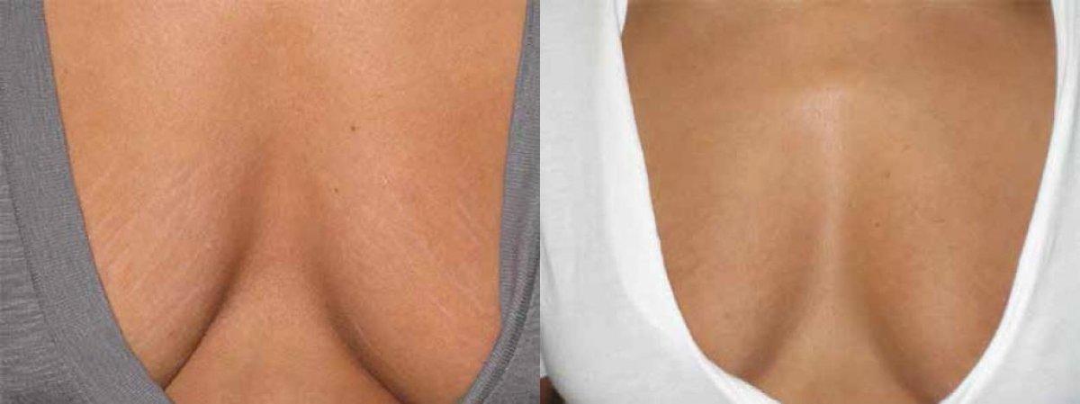 Камера женская грудь с растяжками рот берет видео