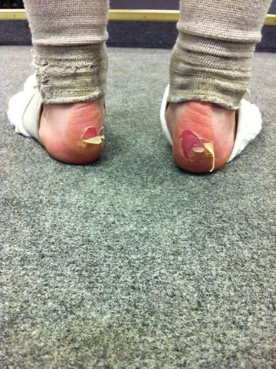 Стопы балерин фото