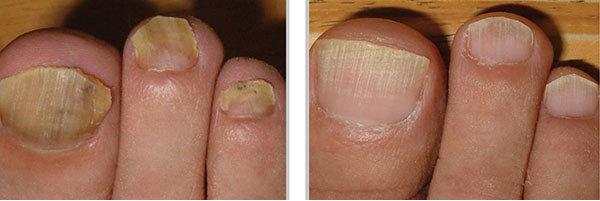 Лечить грибок ногтей по совету малышевой