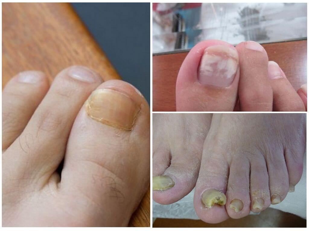 Лечение грибка ногтей унисаном