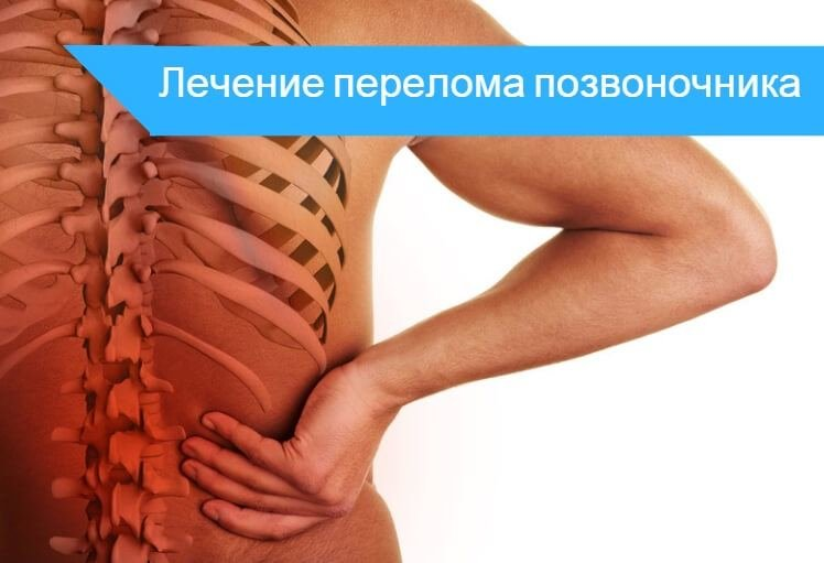 Лечение переломов позвоночника в петербурге