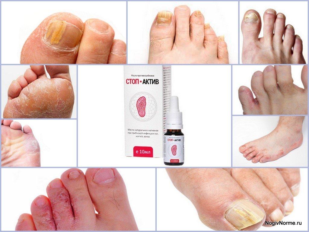 Стоп актив от грибка ногтей