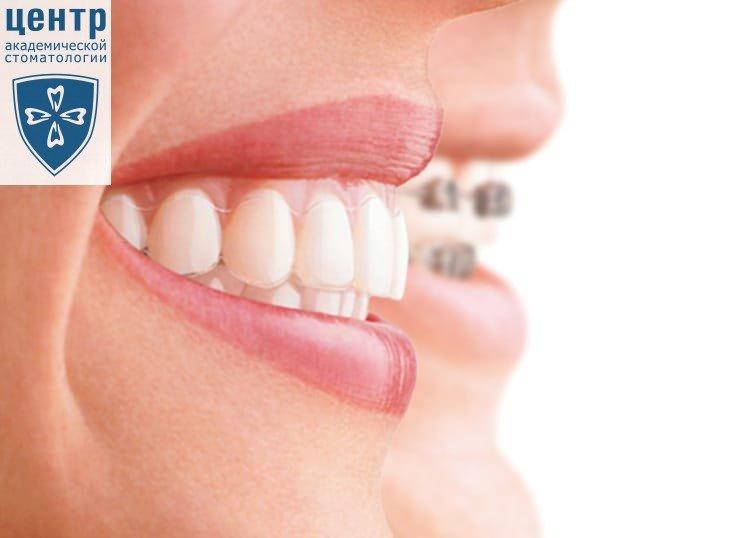 Капа Dental Trainer для выравнивания зубов. Капа для выравнивания зубов,  исправление прикуса капой для 5c9bd021fd0