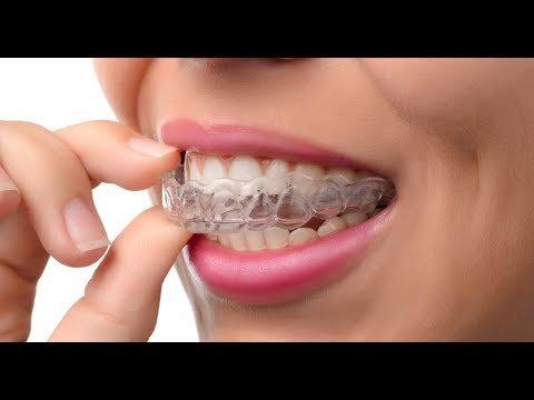 Капа Dental Trainer для выравнивания зубов. Трейнер для зубов  цена и фото  Сайт производителя 1a57c241af3