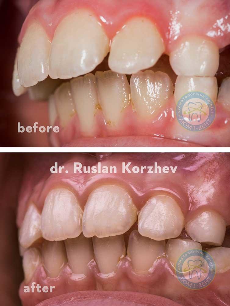 Капа Dental Trainer для выравнивания зубов. Капы для выравнивания зубов,  как пользоваться. Исправление 5d20d734fc0