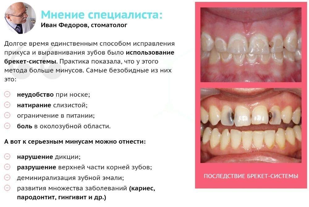 Капа Dental Trainer для выравнивания зубов. Реальные отзывы о капе для  выравнивания Официальный сайт 🏷 31461a993ef