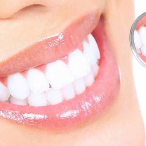 Капа Dental Trainer для выравнивания зубов. Элайнеры для выравнивания зубов.  Невидимые каппы Перейти на 4ac2f67307d