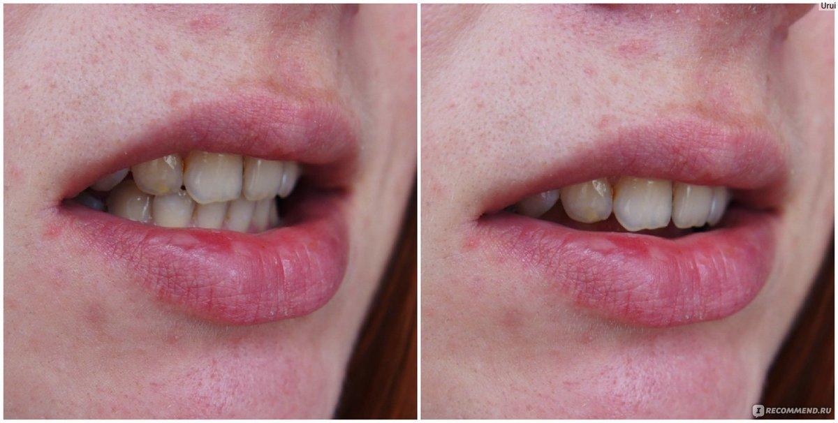 Капа Dental Trainer для выравнивания зубов. Купить В Аптеке За Руб Сайт  производителя. 6da3bd71355