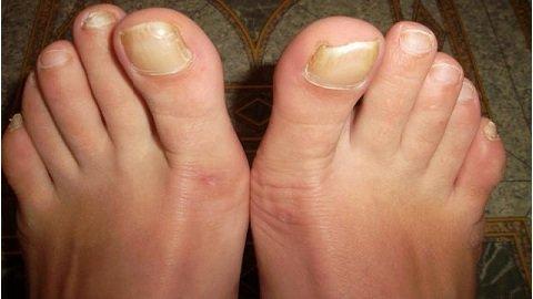 Грибок ног симптомы мазь