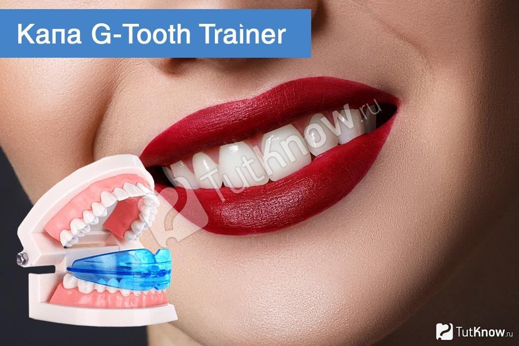 Капа Dental Trainer для выравнивания зубов. Капы для выравнивания зубов    Купить со скидкой - 17d0562ae58