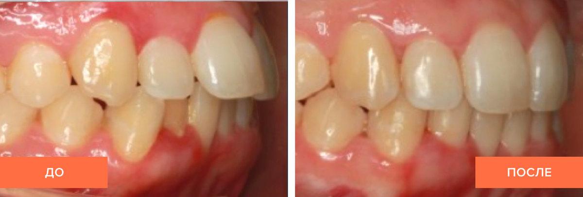 Капа Dental Trainer для выравнивания зубов. Детский трейнер для зубов для  выравнивания и исправления Перейти 5bbf9b6f7ce
