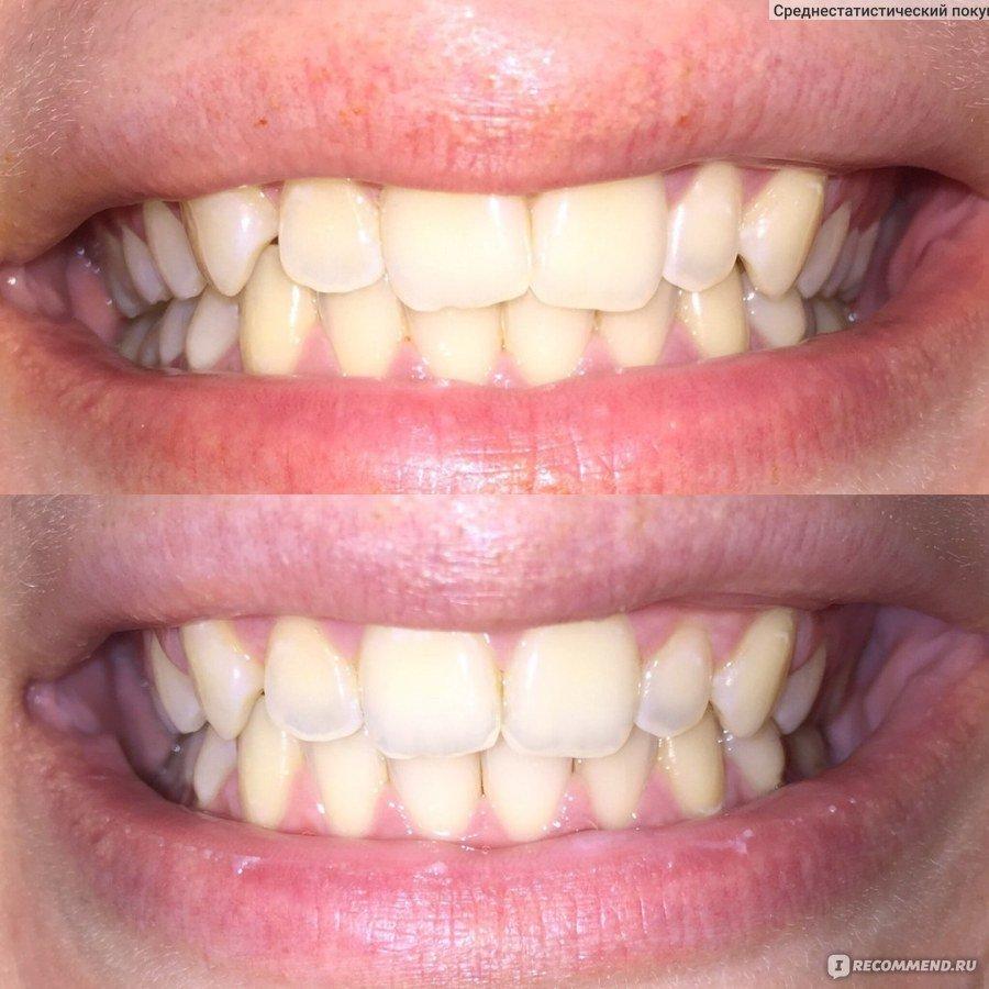 Капа Dental Trainer для выравнивания зубов в Стерлитамаке. Капы для выравнивания  зубов в Ростове- 42edfb86a9b