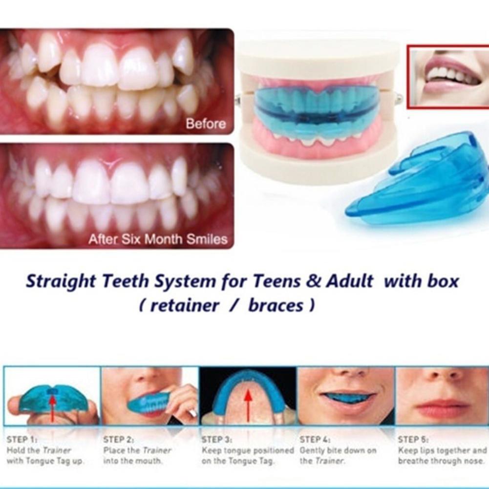 Капа Dental Trainer для выравнивания зубов. Отзывы О Трейнер Для  Исправления Прикуса Зубов У Детей 9cff90d4ff9