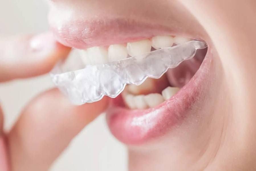 Капа Dental Trainer для выравнивания зубов. Трейнеры для зубов  что это,  достоинства, 970227c23a9