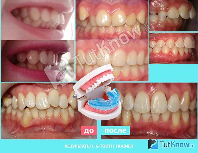 Капа Dental Trainer для выравнивания зубов в Балабанове. Капы-тренажеры для выравнивания  зубов - 90e23bef264