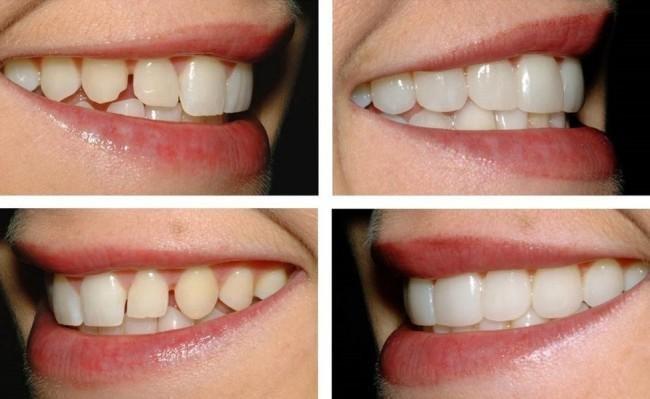 Капа Dental Trainer для выравнивания зубов. Капы для выравнивания зубов   преимущества и недостатки Официальный e3194617fef