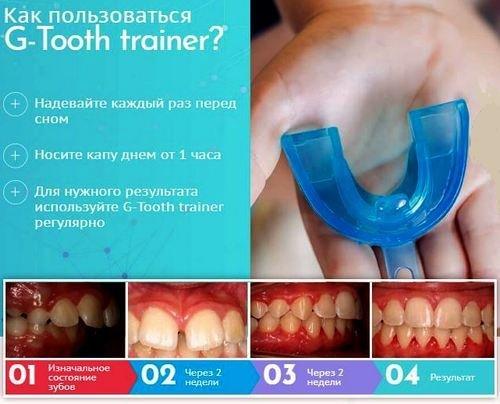 Капа Dental Trainer для выравнивания зубов в Навашине. Что такое трейнер  для исправления прикуса зубов 4f3e1bcadf5