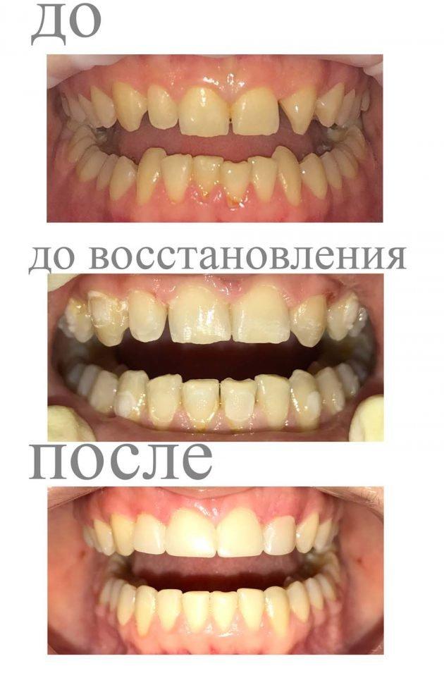 Капа Dental Trainer для выравнивания зубов. Капы для выравнивания зубов в  Минске, стоимость кап dc8148c5682