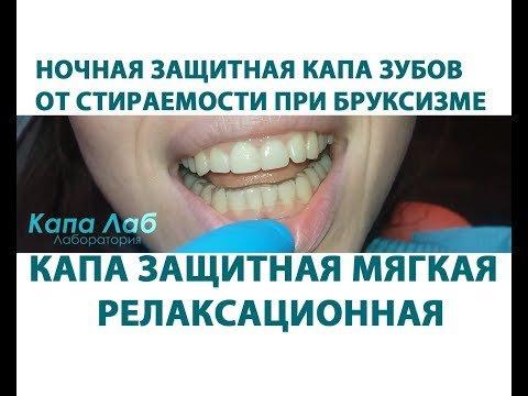 Капа Dental Trainer для выравнивания зубов. Капа для выравнивания зубов   показания к ношению и fc6e0a7c115
