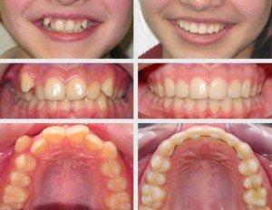Капа Dental Trainer для выравнивания зубов в Спасске. Цены на изготовление  кап, стр 32 c4a5258b25d