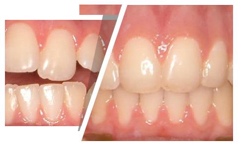 Капа Dental Trainer для выравнивания зубов. Капы для зубов в Киеве — выравнивание  зубов каппами eb1d7920f8f