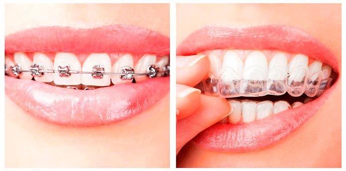 Капа Dental Trainer для выравнивания зубов. Капы для выравнивания зубов    ЗА И ПРОТИВ   f1eb33a2e20