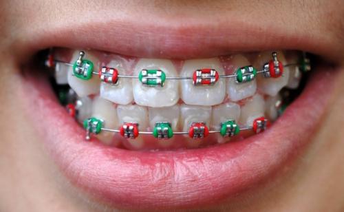 Капа Dental Trainer для выравнивания зубов. Капа для выравнивания зубов.  Купить со скидкой - 8f4c51d938a