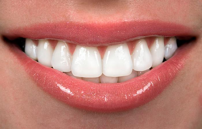 Капа Dental Trainer для выравнивания зубов. Капы для выравнивания зубов у  взрослых — цена в fdf6170da87