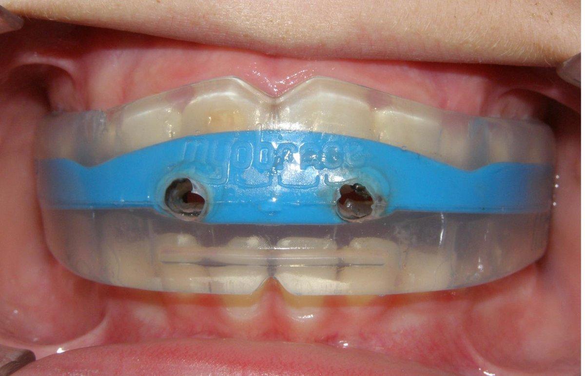 Капа Dental Trainer для выравнивания зубов. Капы для выравнивания зубов   отзывы, фото до f6316a59fe1