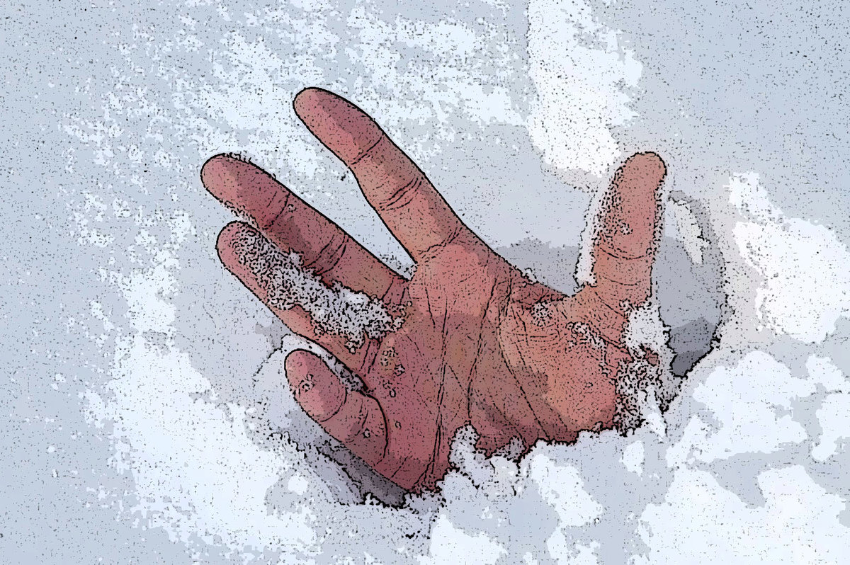 картинки степени обморожения двух