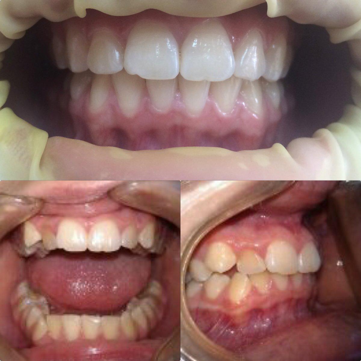 Капа Dental Trainer для выравнивания зубов. - Капа для выравнивания зубов  Купить со скидкой - beabf692961