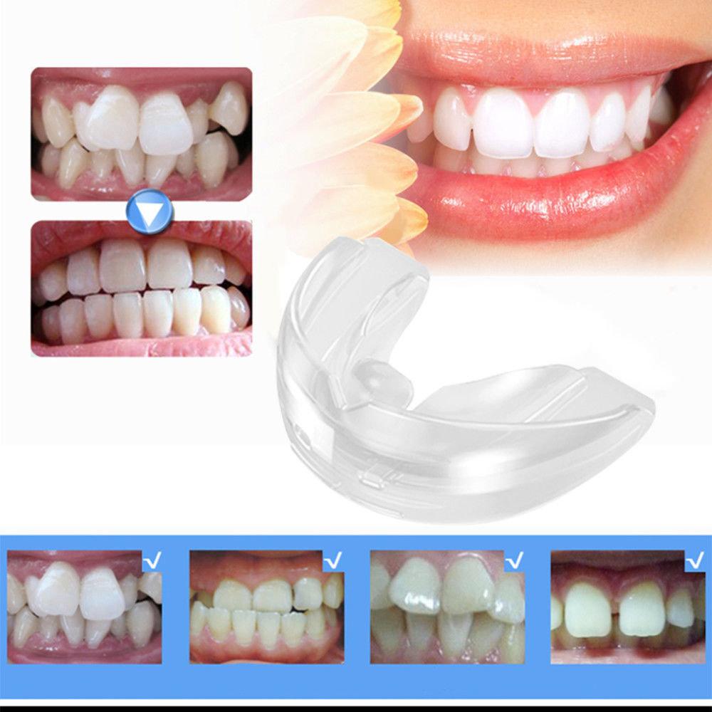 Капа Dental Trainer для выравнивания зубов. Капы для выравнивания зубов -  Dr O Купить со 4a3214335d0