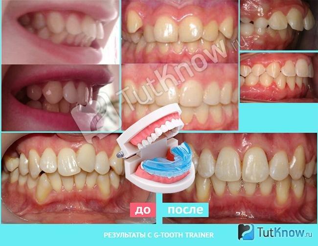 Капа Dental Trainer для выравнивания зубов. Капы для выравнивания зубов    Американская Купить со скидкой 96a6c079733