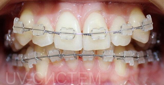 Капа Dental Trainer для выравнивания зубов. Капы для выравнивания зубов   принцип действия Подробности. d13777a7cb0
