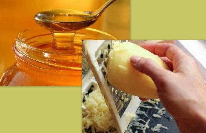 Народные рецепты для лечение шейного остеохондроза фото