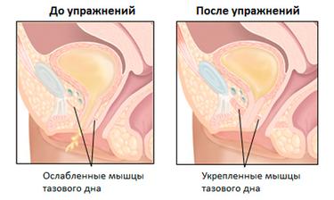 Мышцы влагалища фото, посмотреть самые красивые женские соски