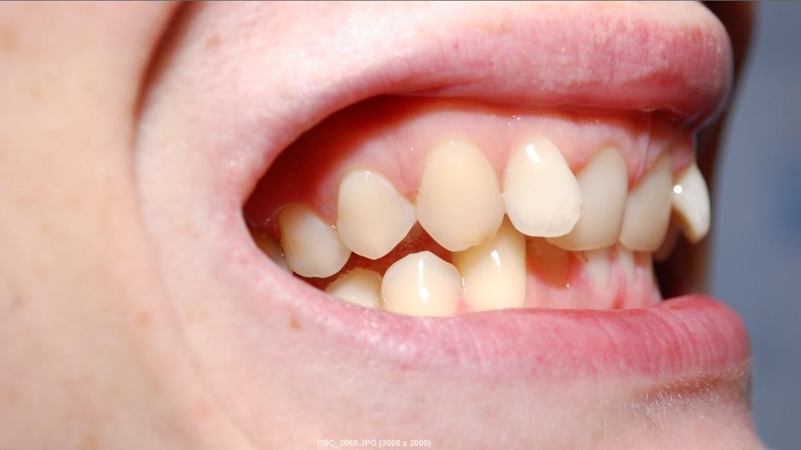 Капа Dental Trainer для выравнивания зубов. Трейнеры для выравнивания зубов  у взрослых и детей  55bfffb66f0