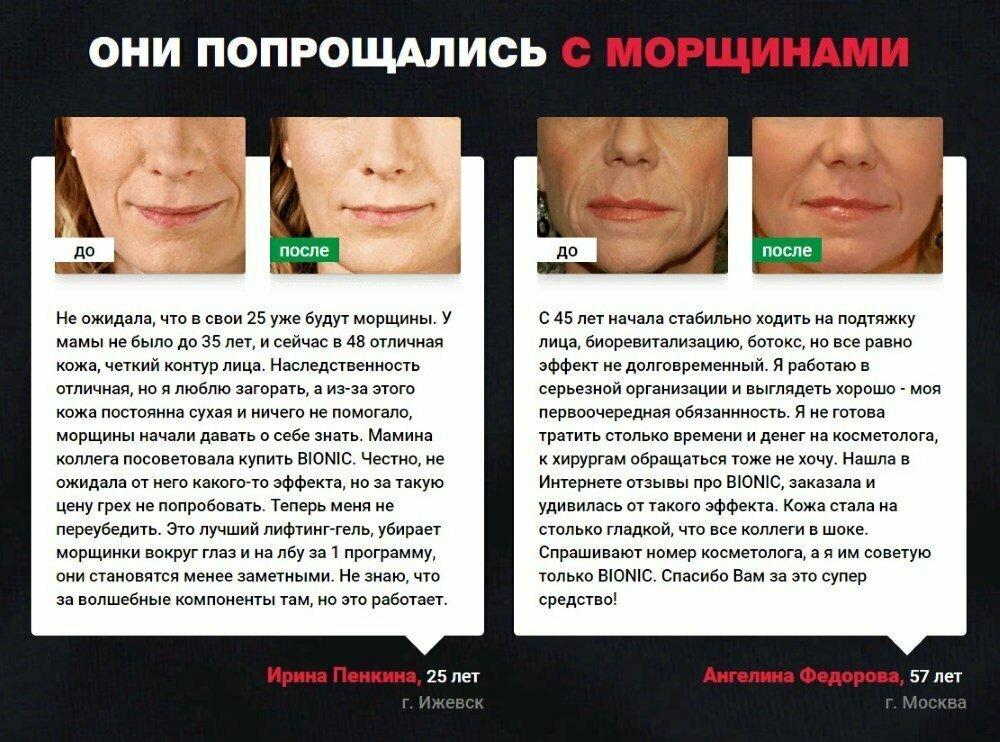 Bionic - от морщин в Кемерово