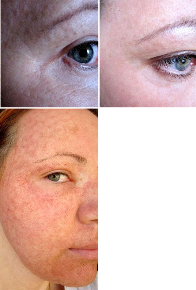 лазерное омоложение лица отзывы фото аллергического