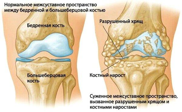 Дисплазия тазобедренных суставов у детей симптомы лечение