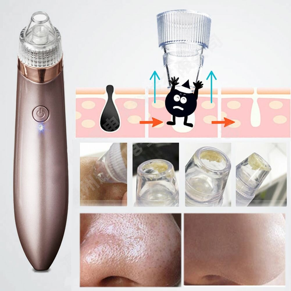 Профессиональный вакуумный очиститель кожи Beauty Skin Care Specialist