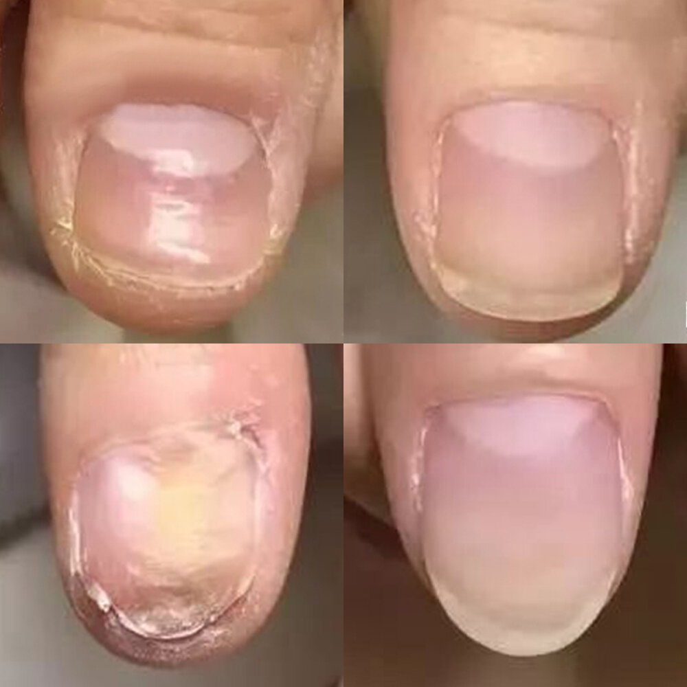 Поражение ногтей